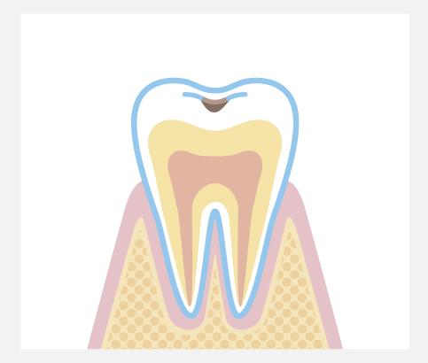 エナメル質内の虫歯