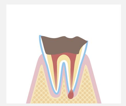 C4:歯質が失われた虫歯